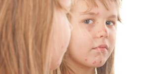 Cuánto dura la varicela