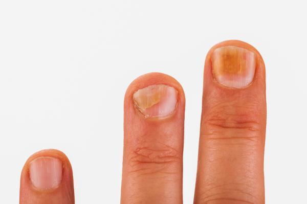 Problemas en las uñas por falta de vitaminas - Lentitud en el crecimiento de las uñas: falta de yodo y zinc