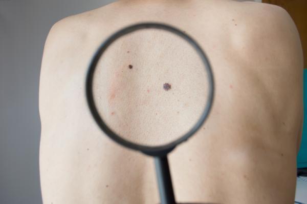Lunares azules en la piel: causas y tratamiento