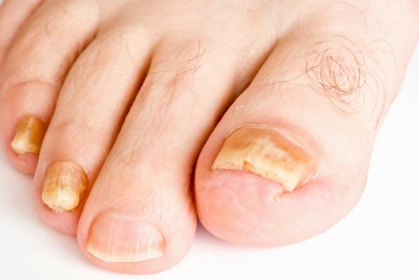 Hongos en las uñas: causas, síntomas y tratamiento