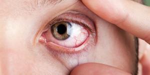 Ojos secos por ansiedad: causas y tratamiento