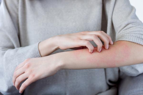 Por qué tengo picor en los brazos y cómo aliviarlo
