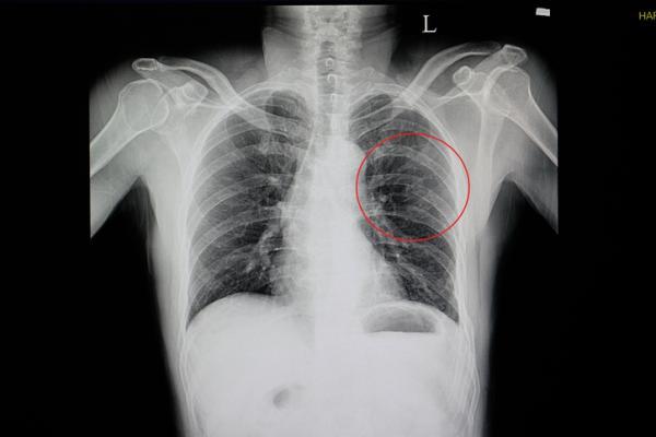 Dolor debajo de las costillas en el lado izquierdo: causas - Dolor debajo de las costillas: causas comunes