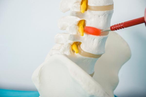 Dolor de espalda a la altura de los pulmones: causas y tratamiento - Alteraciones articulares