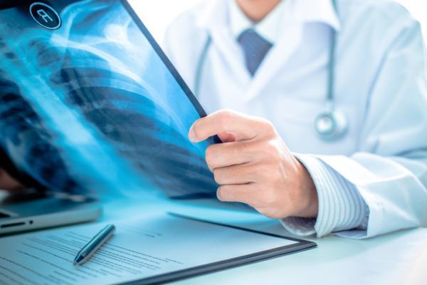 Cáncer de huesos: síntomas y pronóstico
