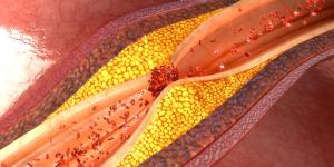 Complicaciones de la hipertensión arterial