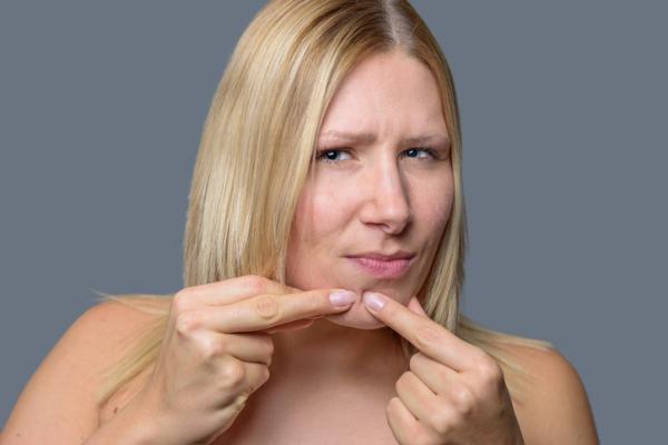 Infusiones depurativas para el acné - ¿Cuáles son las causas del acné?