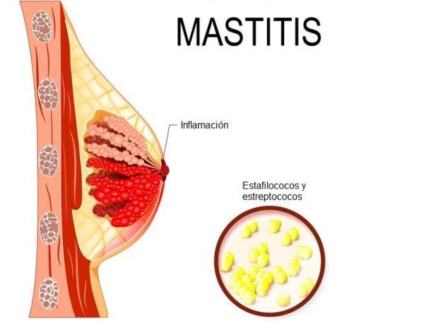 Dolor de pechos en la menopausia: causas y cómo aliviarlo - Pechos inflamados