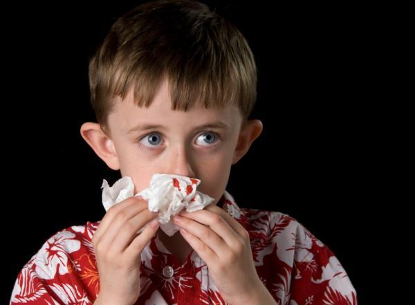 Cómo parar el sangrado de nariz en un niño