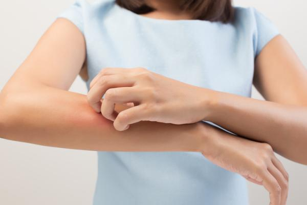 Remedios caseros para el picor de la piel
