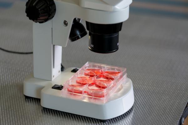 Qué es el RDW en un análisis de sangre - RDW en sangre: valor normal