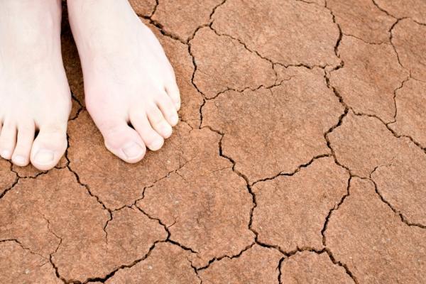Por qué da comezón en los pies en la noche - Picor de pies nocturno por eczema dishidrótico