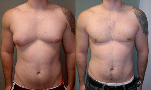Ginecomastia en hombres: qué es, causas, tratamiento y operación - Síntomas de la ginecomastia
