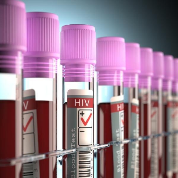 Cada cuánto puedo donar sangre - ¿Cuándo no puedo donar sangre?