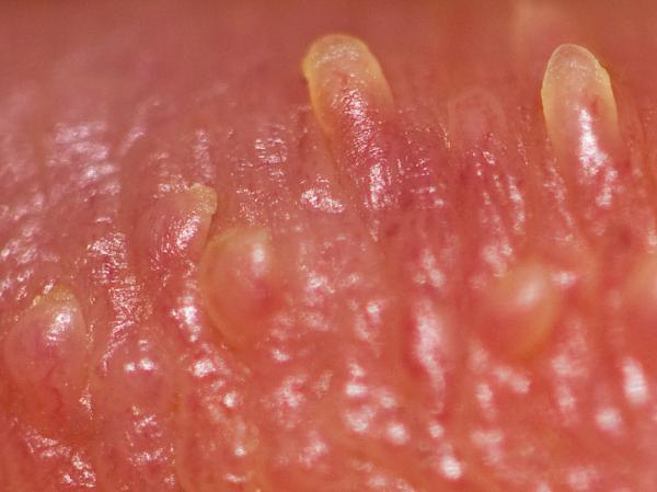 ¿Las pápulas perladas son contagiosas? - ¿Qué son las pápulas perladas?