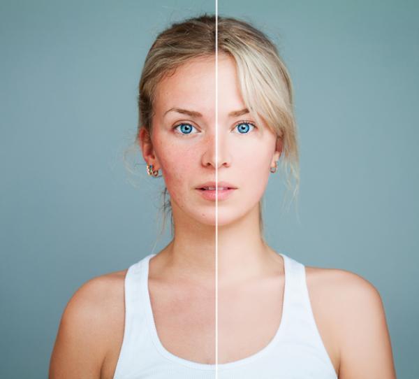 Irritación en la cara: causas, tratamiento y remedios caseros