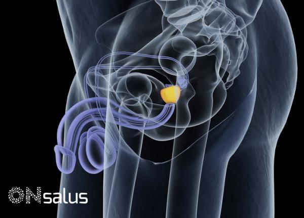 Siento como si tuviera algo atorado en el ano: causas - Sensación de que algo se mueve en el ano por por prostatitis