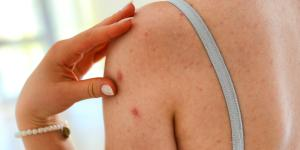 Granos en los brazos: causas y cómo eliminarlos
