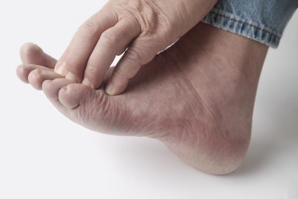 Dolor de rodilla en reposo: causas y tratamiento - Dolor de rodilla en reposo por gota