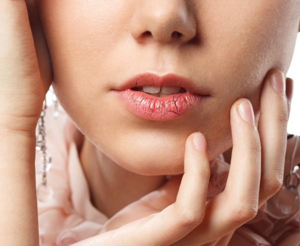 Labios morados: causas - Labios morados por frío