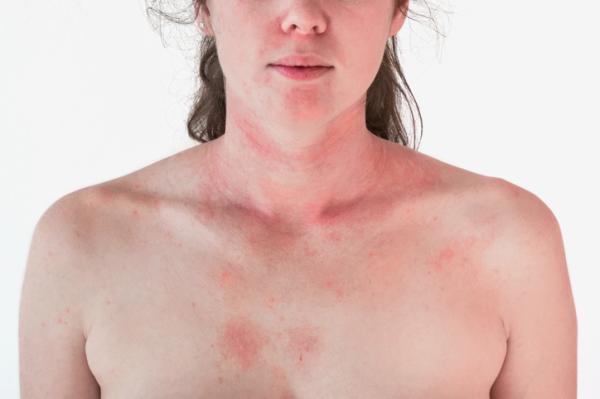 Tipos de erupciones en la piel - Erupción en la piel por fármacos