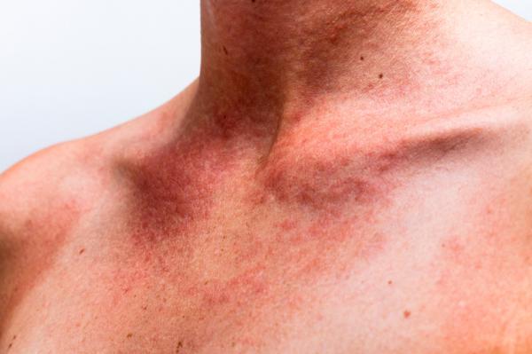 Tipos de erupciones en la piel - Erupciones en la piel por calor