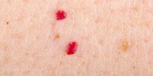 Lunares de sangre: por qué salen y cómo quitarlos