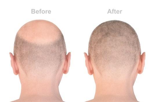 Alopecia androgénica: qué es, causas y tratamiento - Tratamientos para la alopecia androgénica