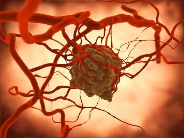 Tumor cerebral: síntomas y signos iniciales - Tipos de tumores