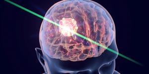 Tumor cerebral: síntomas y signos iniciales