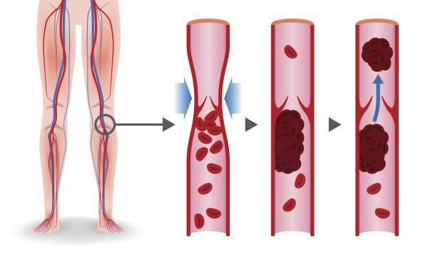 Cuánto tiempo tarda en curarse una trombosis en la pierna