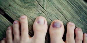 Cómo curar una uña negra del pie
