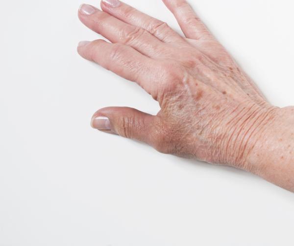 Manchas cafés en las manos y dedos: causas y cómo quitarlas