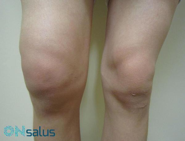 hielo para desinflamar la rodilla