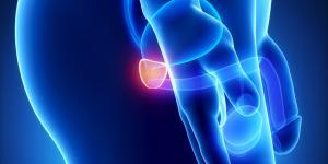 Prostatitis crónica: tratamiento natural