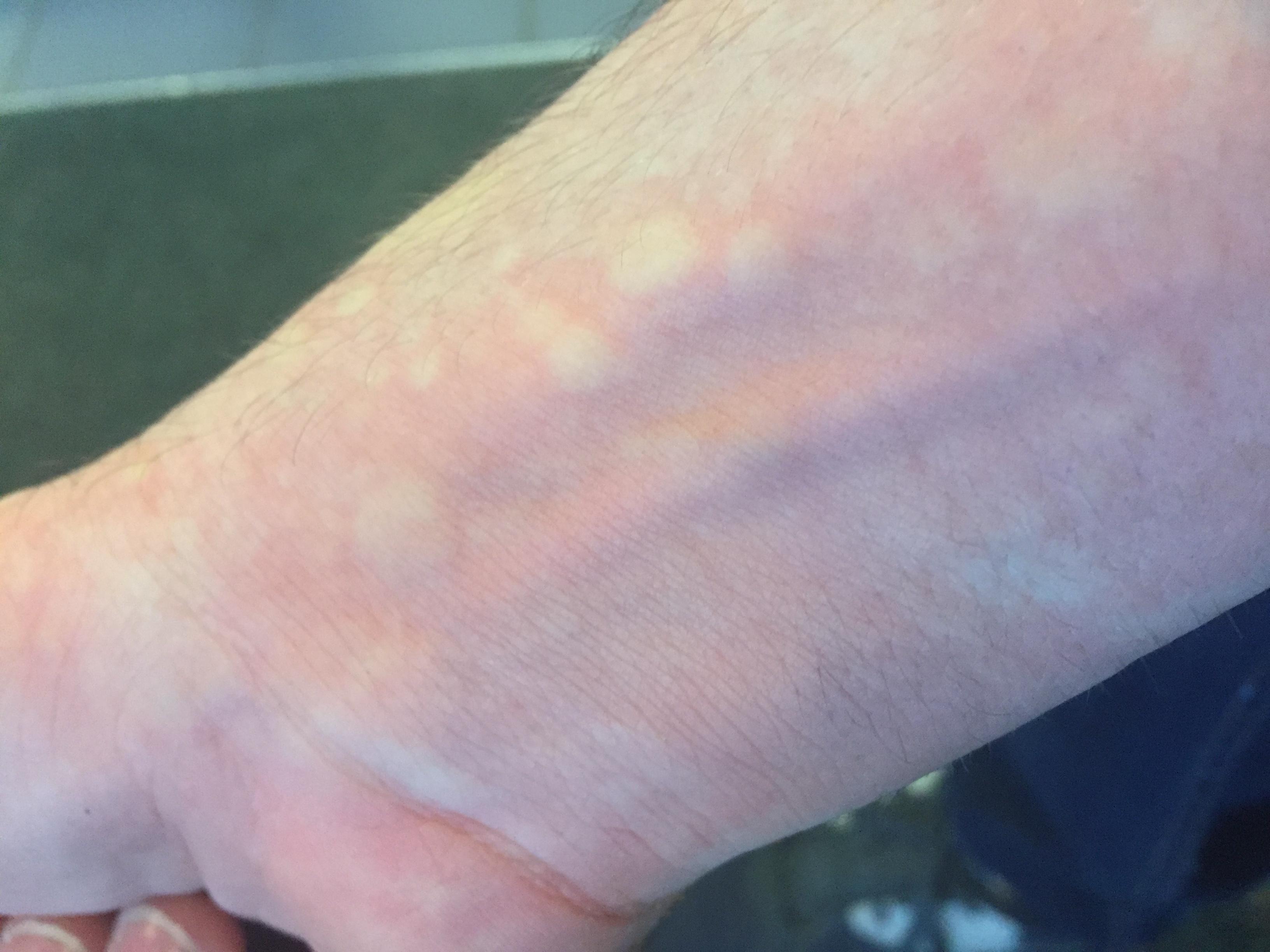 manchas rojas en varias partes del cuerpo
