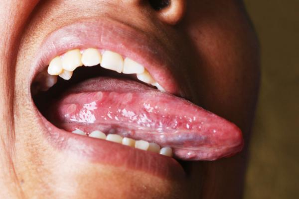 Bulto debajo de la lengua: causas - Llagas en la lengua