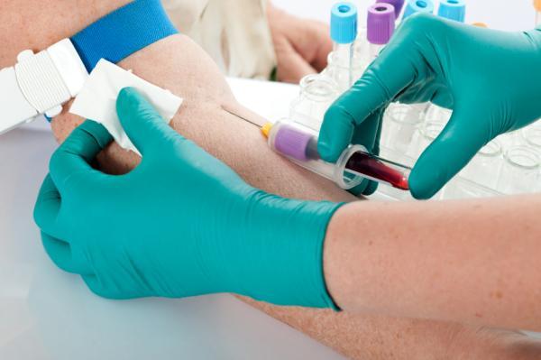Leucocitos altos en sangre: causas y cómo bajarlos - Diagnóstico de la leucocitosis
