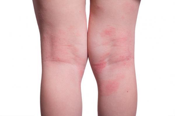 Ronchas en las piernas: por qué salen y cómo quitarlas - Por qué salen las ronchas en las piernas