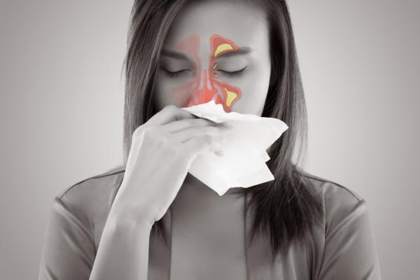 Tengo sinusitis y no se me quita, ¿qué hago? - Síntomas y duración de la sinusitis