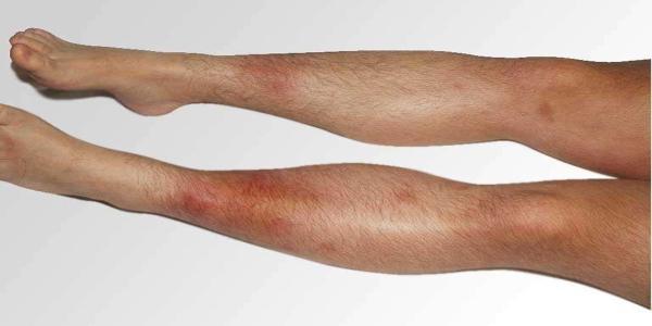 Eritema nodoso: causas, síntomas y tratamiento -con fotos- - Síntomas del eritema nodoso