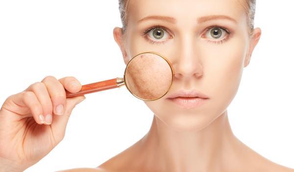 Cómo usar aceite de rosa mosqueta para cicatrices de acné - ¿Es bueno el aceite de rosa mosqueta para las marcas de acné?