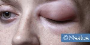 Angioedema: causas, síntomas y tratamiento