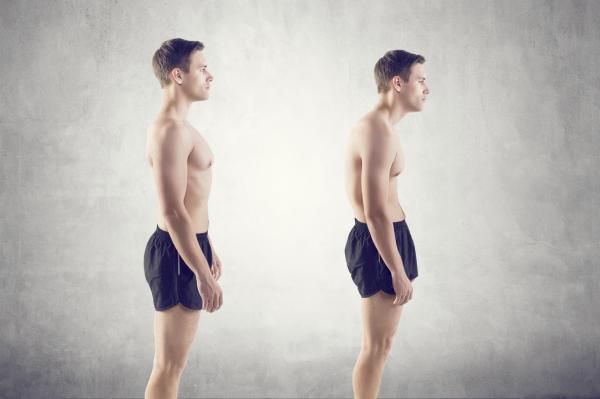 Cifosis dorsal: síntomas, tratamientos y ejercicios correctivos - Cifosis dorsal: causas comunes