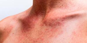 Sarpullido por calor: por qué se produce y cómo quitarlo