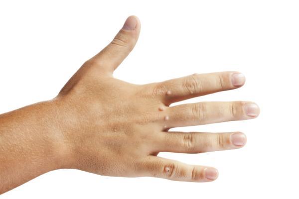 Mezquinos en las manos: por qué salen y cómo quitarlos - ¿Cómo quitar mezquinos en las manos? - Tratamiento