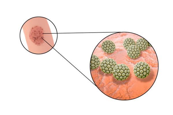 Verrugas en los testículos: causas, síntomas y tratamiento - Verrugas en los testículos: causas
