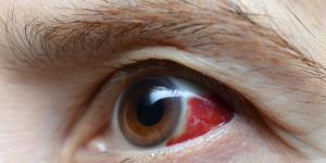 Mancha roja en el ojo: causas y tratamiento