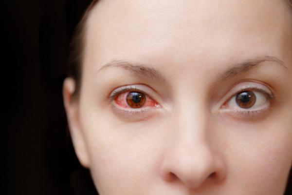Mancha roja en el ojo: causas y tratamiento - Mancha roja en el ojo por hemorragia subconjuntival o derrame ocular