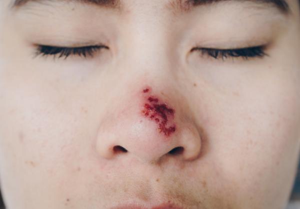 Herpes en la nariz: causas, síntomas y tratamiento